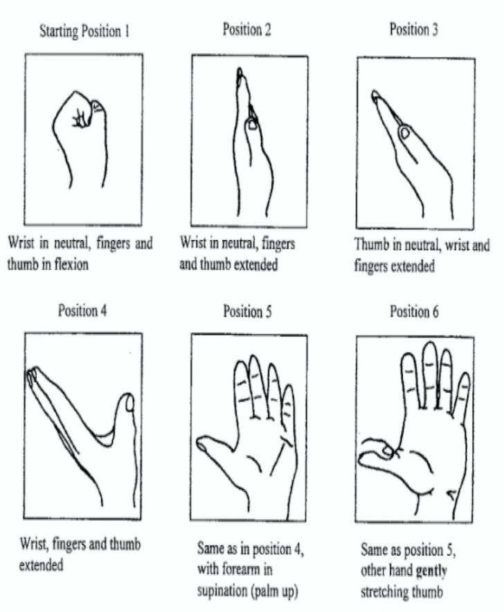 carpal tunnel nerve gliding exercises pdf