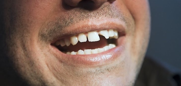 Ask The Dentist: 'What Do I Do If I Have a Broken, Chipped or Knocked Out Tooth?'